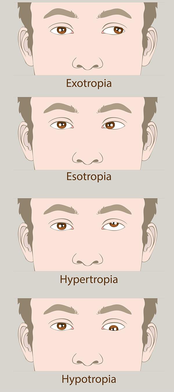amblyopia vagy myopia)